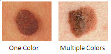 early sign of melanoma
